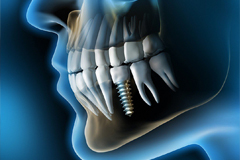 Implantology, Dental, stomatology